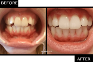 Before and After of Smile Direct Club